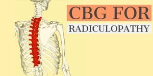 CBG For Radiculopathy