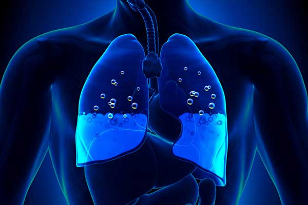 CBD Effects On Lungs, CBD For Pulmonary Edema